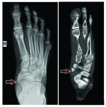 Insufficiency Fractures at Unusual Sites: A Case Series