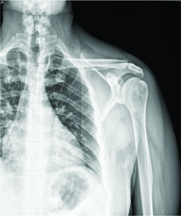 a case of septic arthritis of shoulder presenting as