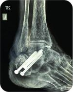 Unusual Presentation of Tuberculosis of Subtalar Joint