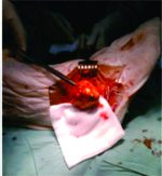 Villonodular Synovitis of the Subtalar Joint: A Case Report