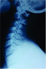 Spinal Cord Injury Due to Cervical Disc Herniation without Bony Involvement Caused by Wrestling – A Case Report