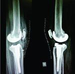 case study osteoarthritis with a total knee arthroplasty essay Limitation of knee mobility medgen uid  mobility following total knee arthroplasty for osteoarthritis:  before and after total knee arthroplasty: a pilot study.