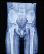 Bilateral Gluteus Maximus Contracture in a Young Child: A Case Report and Review of Literature
