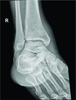 A Rare Case of Melioidosis Causing Multifocal Osteomyelitis in an Uncontrolled Diabetic Host