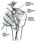 Medial Dislocation of the Long Head of the Biceps without Concomitant Subscapularis Tear: A Case Report