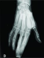 Deep Flexor Tendon Entrapment in a Diaphyseal Fracture of the Proximal Phalanx – A Case Report