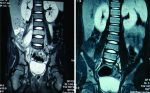 Pyogenic Vertebral Body Osteomyelitis in a Child: A Case Report