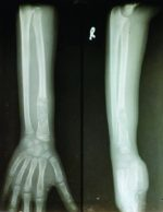 Recurrent Non-Ossifying Fibroma in Shaft of Distal Radius– A Rare Case