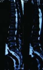 A Rare Presentation of Spinal Schwannoma Causing Conus Medullaris Syndrome: A Case Series on Surgical Outcome.