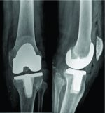 Total Knee Arthroplasty in a Transtibial Amputee