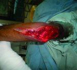 Rare Giant Cell Tumor of Olecranon Bone!!!!