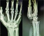 Scapholunate Dissociation with Ulnar Impaction: A Case with Review of Literature