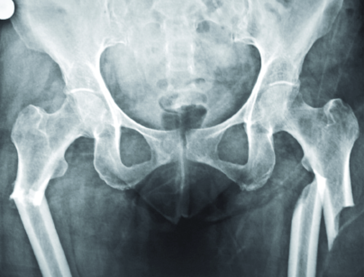 case report  bisphosphonate induced bilateral osteoporotic subtrochanteric fracture femurii