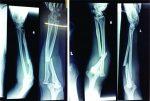 Bilateral Monteggia Fracture: A Rare Case Presentation