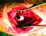 Accidental Captive-bolt Gun Injury to the Distal Femur: A Case Report
