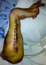 Acute Both Bone Fracture in a Chronic Contracted Forearm