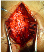 Intramedullary Tuberculoma of Dorsal Spinal Cord: A Case Report with Review of Literature