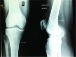 An Unusual Case of Acl Cyst with Multiple Melon Seed Bodies of the Knee