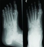 Bilateral Adrenal Adenoma Presented As Multiple Metatarsal And Phalangeal Fractures