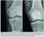 Intra-articular Partial Acetabular Resection and Allograft Reconstruction for Synovial Sarcoma