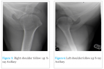 A Case of Bilateral Anterior Gleno-Humeral Dislocation following First Time Seizure