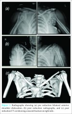 Acute spontaneous atraumatic bilateral anterior dislocation of the shoulder joint with Hill-Sach's lesions: A rare case