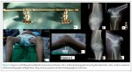 Successful Correction of Idiopathic Bilateral Flexion Deformity of Knee: A Rare Case Report