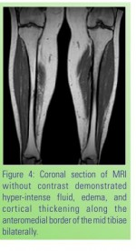 Chronic Bilateral Tibial Stress Fractures with Valgus Treated with Bilateral Intramedullary Nailing: A Case Report