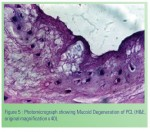 Intercondylar Ganglion Cyst with Mucoid Degeneration of Posterior Cruciate Ligament of Knee: Report of A Rare Case and Review of Literature