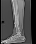 Use of Fibula Bridge Graft Technique to Treat a Distal Tibia Non Union- A Case Report