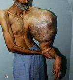 Mega Tumour (Chondrosarcoma) of Humerus – an Insanely Large Tumor and its Social Implications