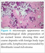 Idiopathic Tumoral Calcinosis with Unusual Presentation- Case Report with Review of Literature