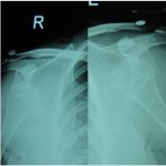 Bilateral Traumatic Anterior Dislocation of Shoulder – A Rare Entity