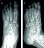 Delayed Soft Tissue Necrosis in an Atypical Closed Calcaneal Fracture: A Case Report