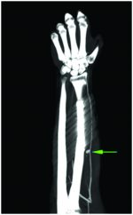 Radial Artery Pseudoaneurysm in a Post-operative Case of Midshaft Radius Fracture