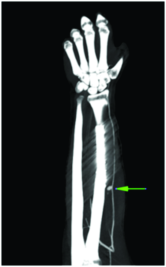 early definitive fixation   open periprosthetic femur fracture   polytraumatized