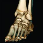 A Rare Cooccurrence of Tillaux-Chaput and Volkmann Fracture in an Adolescent Male: A Case Report